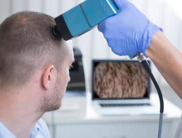TrichoScan hajvizsgálat